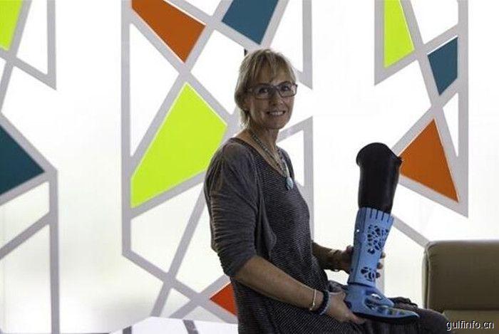 神奇!阿联酋首个全3D打印假腿成功安装在一名迪拜居民身上
